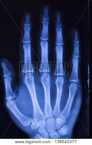 Hand Injury Fingers Xray Scan