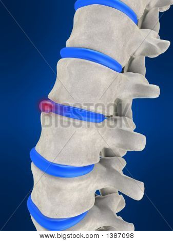 Slipped Disc