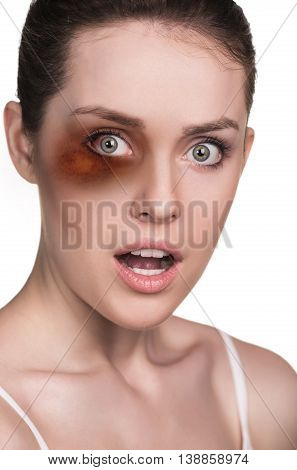 Beaten woman face isolated on white. Domestic violence concept.