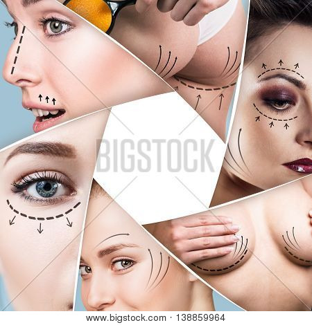 Collage of plastic surgery concept with blank space