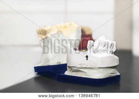 Technical shots of model on a dental prothetic laboratory