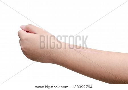 Scar at arm from operation for bone fracture treatment