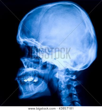 blue image of head xray