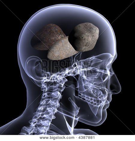Skeleton X-ray - Rocks In His Head