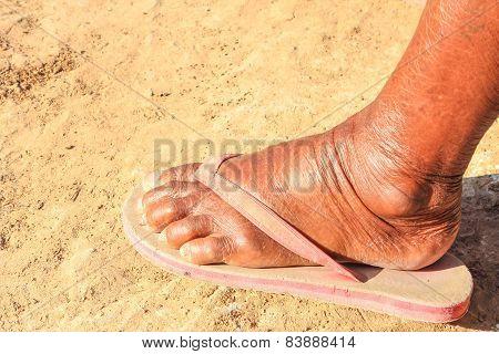 Feet Of The Elderly