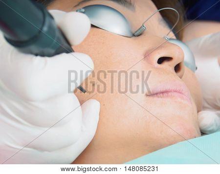 Asian Woman Patient On Laser Procedure Skin Resurfacing In Aesthetic Medicine.