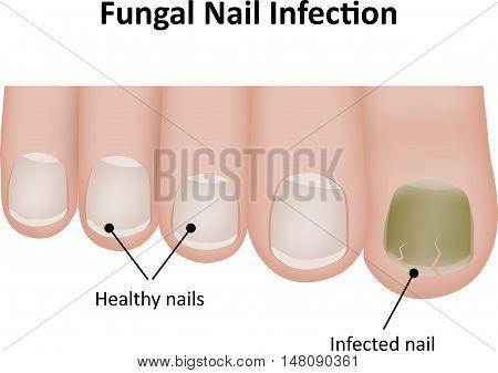 Fungal nail infection, compared to healthy nails