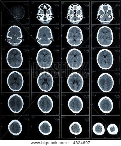 Ct Photography Of Human Brain