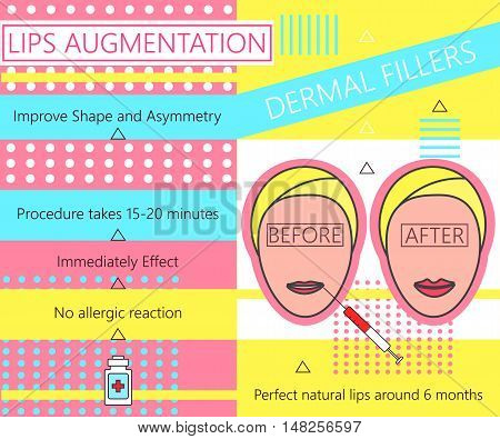 Infographic about Lips Augmentation. Dermal Fillers. Cosmetology. Beauty. Vector illustration.
