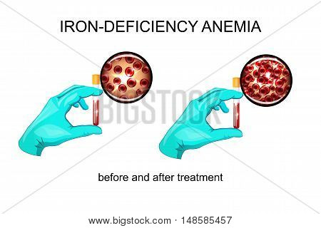 illustration of blood in vitro. red blood cells for iron deficiency anemia