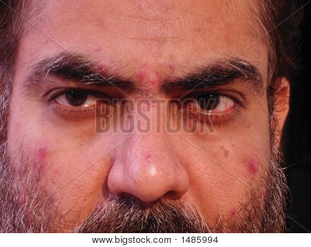 Close Up Of A Man With Skin Malady - 3