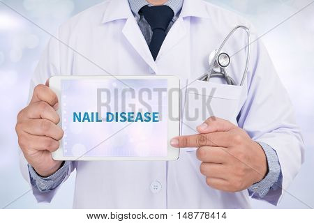 NAIL DISEASE Doctor holding digital tablet doctor work to touch hand