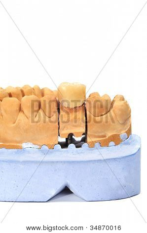 closeup of a dental mould with a prosthesis on a white background