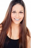 pic of crooked teeth  - Smiling teenager girl with brackets isolated on a white background - JPG