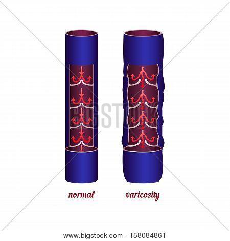 Disease varicose veins. Comparing normal veins and varicose veins. Vector illustration.
