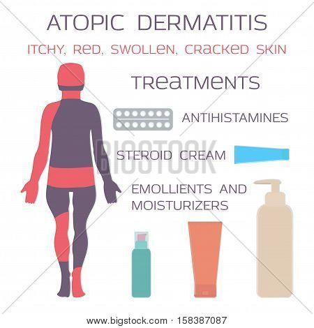 Atopic dermatitis, eczema. Medication is antihistamine tablets and steroid creams. Vector illustration.
