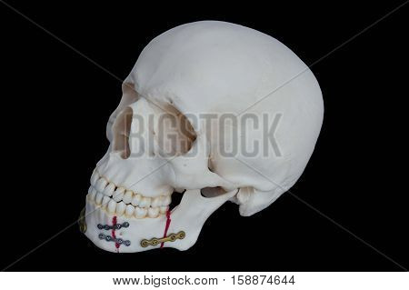 Resin Skull is Broken jaw was fixed by seizing Plate screw. On Black Background.