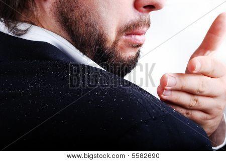 Schuppen Problem auf Mannes sholder