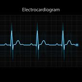 picture of electrocardiogram  - Electrocardiogram 2d illustration on black background vector eps 10 - JPG