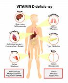 image of diabetes symptoms  - Vitamin D deficiency - JPG