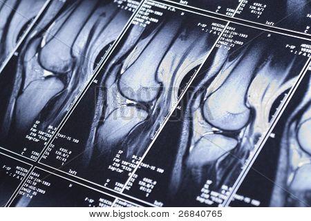 My knee MRI - sport trauma, damage of cross-shaped ligaments