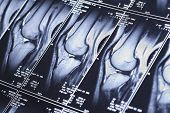 stock photo of mri  - My knee MRI  - JPG