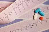Some Colored Pills On Strips Of Electrocardiograms poster