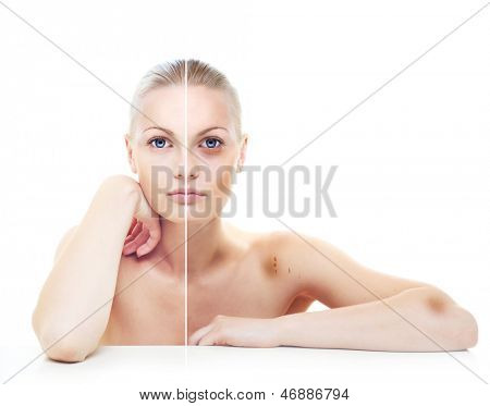 Beautiful woman's portrait isolated on white, before and after abuse, half with bruises on her body.