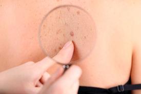 image of birthmark  - Dermatologist examines a birthmark of patient - JPG