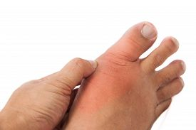 picture of human toe  - Hand embracing foot with deformed right toe due to painful gout inflammation - JPG