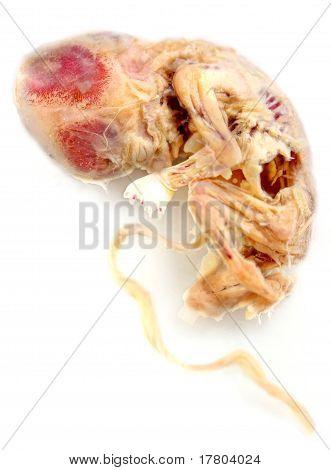 Boy Embryo