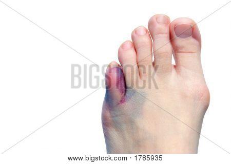 Prellungen, Ballen und Zehen gebrochen