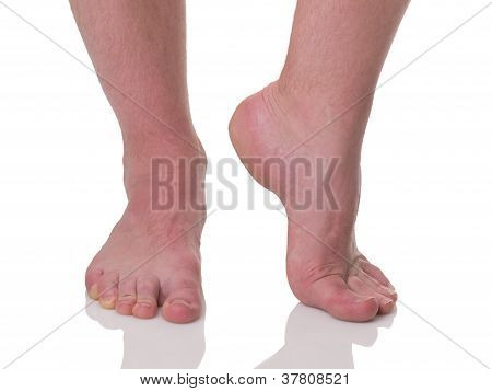 Mature Man Barefoot With Dry Skin And Nails Sideview