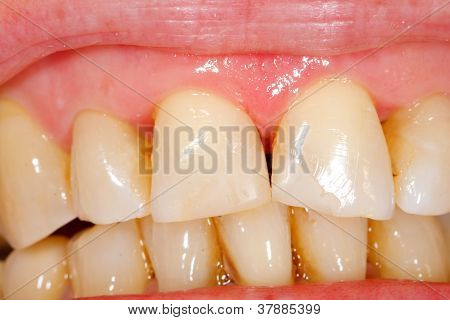 Composite Filling Tooth Treatment