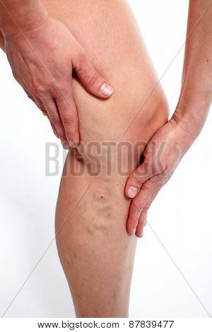 Woman with Varicose veins. Health care background.