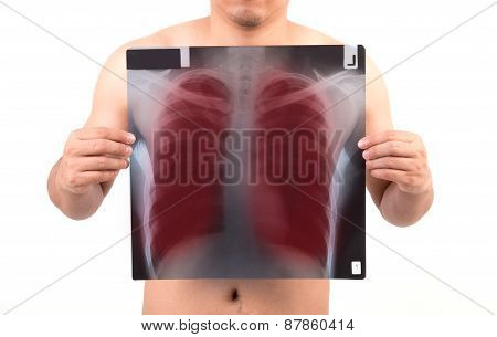 Unidentify Person Showing X-ray Film