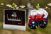 image of uterus  - Baby slippers and ultrasound image hanging on a branch of blossoming tree