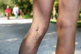 stock photo of varicose  - Painful varicose and spider veins on womans legs who is active and working out self - JPG