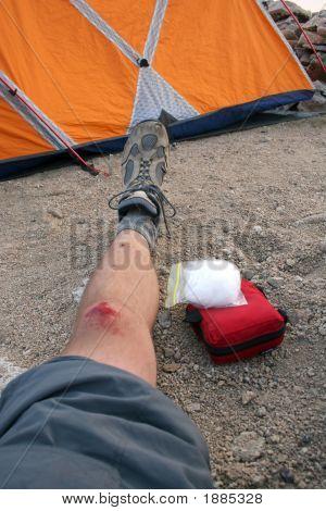 Climbing Injury