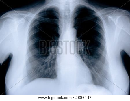 Health Medical X Ray