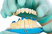 Постер, плакат: Фарфоровых зубов Стоматологическая мост