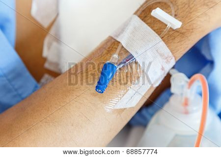 Iv Needle On Patient Arm For Medicine Injection