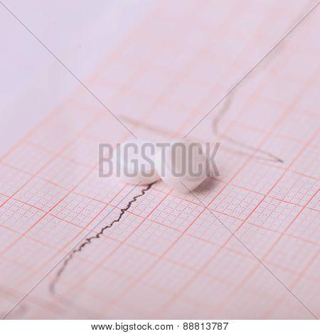 Cardiogram and nitroglycerin