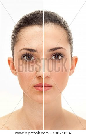 Beauty Concept Before And After Retouch