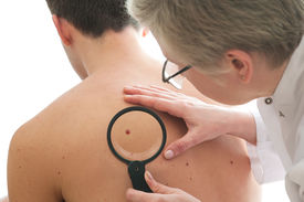 pic of mole  - Dermatologist examines a mole of male patient - JPG