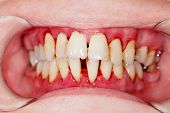 stock photo of tartar  - Human mouth after dental treatment  - JPG