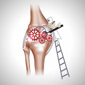 image of knee  - Knee joint abstract treatment procedure illustration - JPG