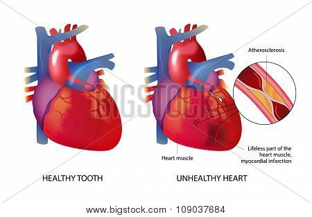 Healhty And Unhealthy Heart