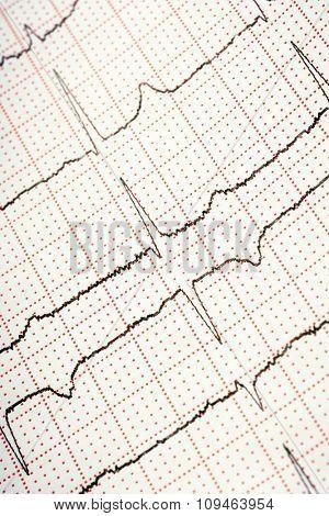 electrocardiogram - closeup