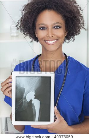 An African American female woman medical doctor in hospital holding a tablet computer with a hip replacement patient X-ray on the screen